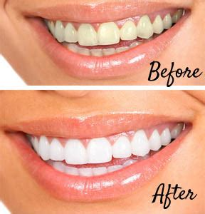 whiten teeth naturally  home