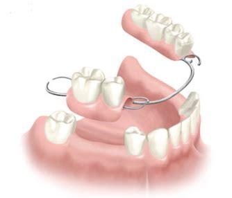 tipi di protesi dentarie mobili le protesi dentarie fisse o congiunta e l implantologia a