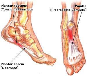 dolore arco plantare interno plantar fasciitis jonathan aarons md management