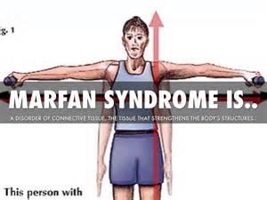 Marfan syndrome by jacob davis