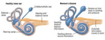 meniere s disease vertigo tinnitus hearing loss
