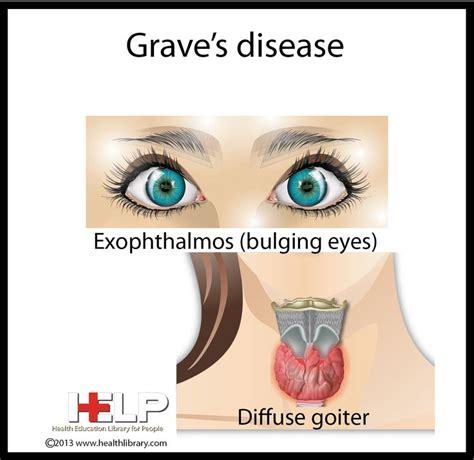 graves disease tattoos pinterest graves disease and grave s disease immune system pinterest graves