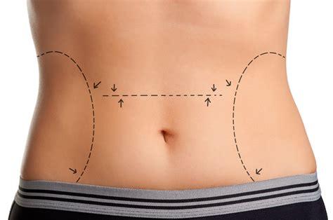 eliminare i cuscinetti di grasso sotto il sedere associazione lesc lipoemulsione sottocutanea o