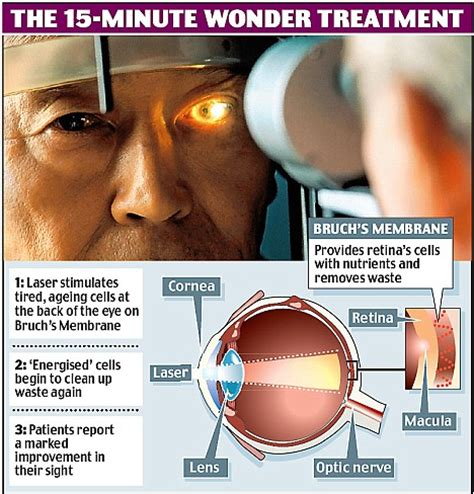 How To Cure Blindness blindness treatment could stop millions from losing their eyesight daily mail