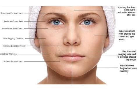 7 Ways To Skin Ageing by 7 Parts Of You That Show The Initial Signs Of Aging