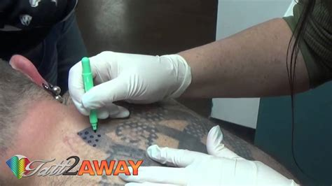tattoo removal non laser tatt2away all natural non laser tattoo removal youtube
