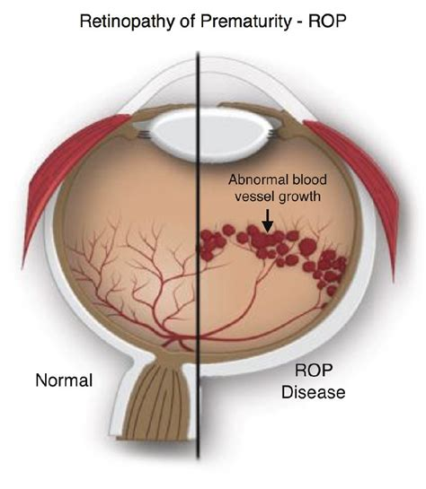 Contact Lens For Blind Eye Retinopathy Of Prematurity Rop In Premature Infants