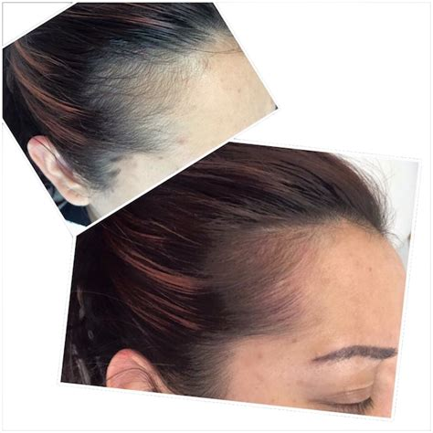 tattoo hair line new scar camouflage techniques permanent make up glasgow