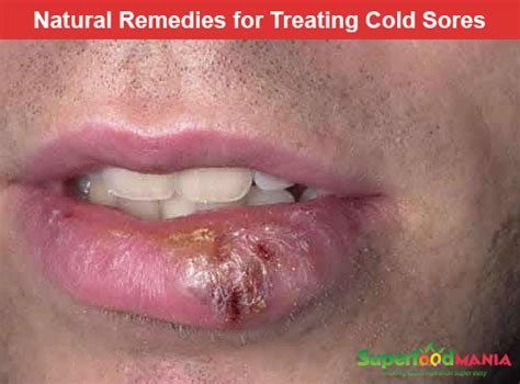 home remedies for cold sores above lip medicinal herbs