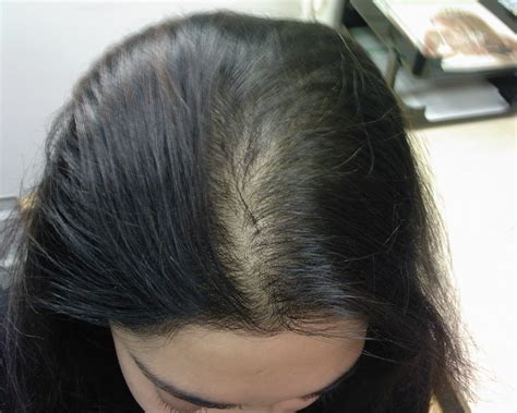 haircuts for young women with alopecia young female hair loss reasons trendy hairstyles in the usa
