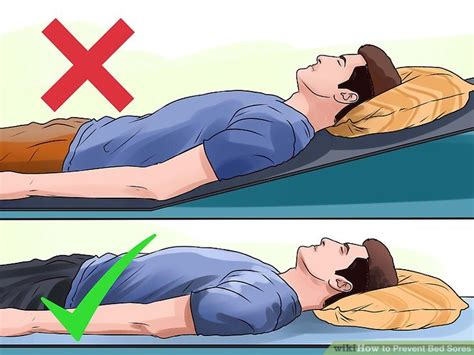 How To Prevent Bed Sores by 3 Ways To Prevent Bed Sores Wikihow