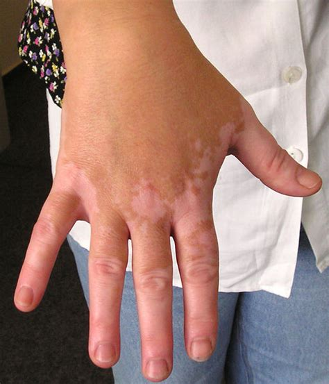 vitiligine cause cura e terapia farmaco e cura
