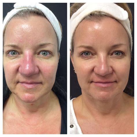 tattoo removal santa barbara picosure laser brighten smooth your skin the g spa sb
