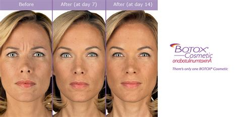 botox injections medical spa houston sugar land