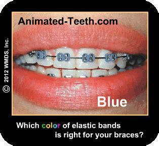 color bands for braces customizing braces gold braces color schemes fashion