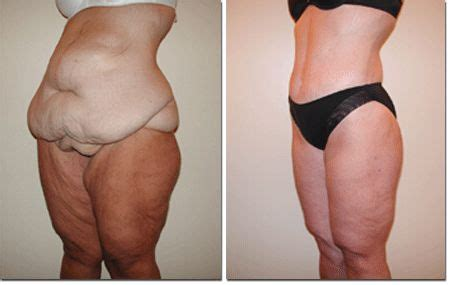 plastic surgery after c section lower body lift before and after breast reduction