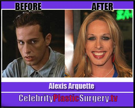 alexis arquette before and after alexis arquette has plastic surgery before and after
