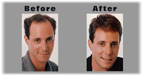 hair extensions for men before and after new hair for men and women