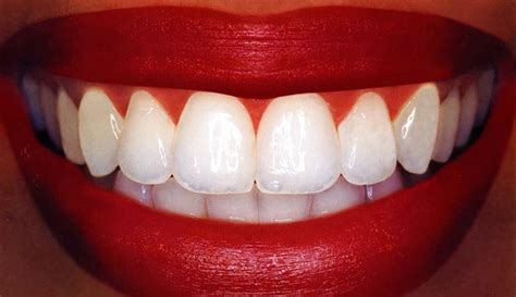 whiter teeth follow  tips today