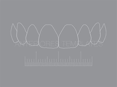 Contour F01 Anteriores Templates Digital Smile Design Powerpoint Template