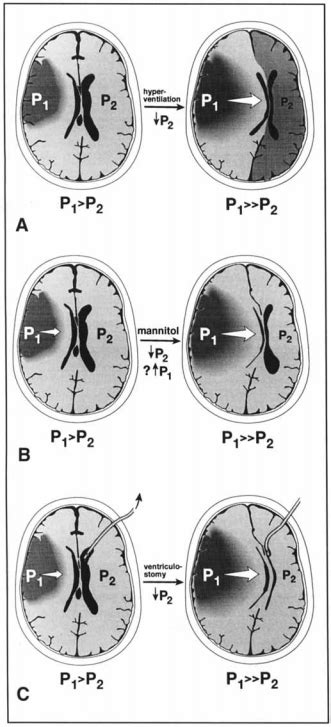 Large Brain Infarction and Intracranial Pressure – The