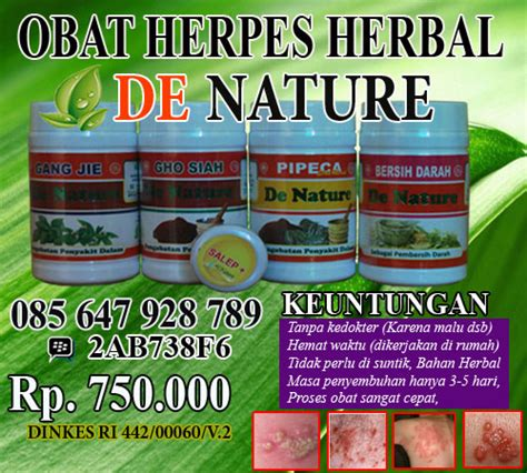 Obat Herpes Herbal De Nature 4 cara mengobati herpes zoster solusi kewanitaan herbal solusi kewanitaan herbal