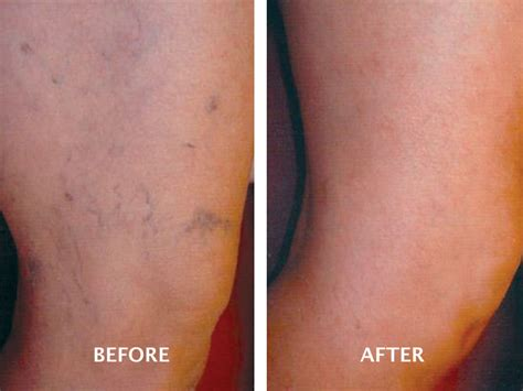 spider veins on the legs treatments varicose vein treatment gallery advanced vein therapy
