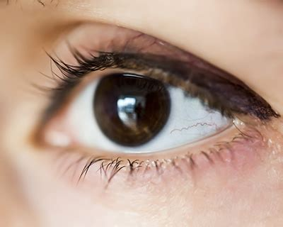 is black an eye color eye color unique as a fingerprint american academy of