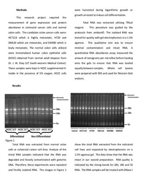colon cancer research paper term paper leukemia