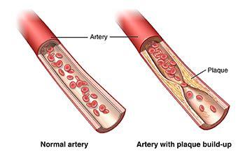 feeling light headed after smoking cigarette atherosclerosis health encyclopedia university of