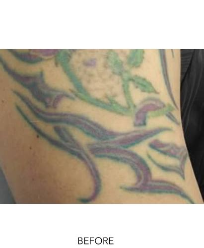 spectra tattoo removal index skinperfectbrothers