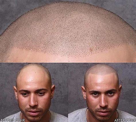 tattoo hair for bald men hair tattoos for baldness popsugar