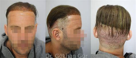 hängesessel mit fußteil haartransplantation ohne rasur bzw mit teil rasur