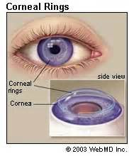 When Does It Start Getting Light Outside Your Cornea Conditions Symptoms And Treatments