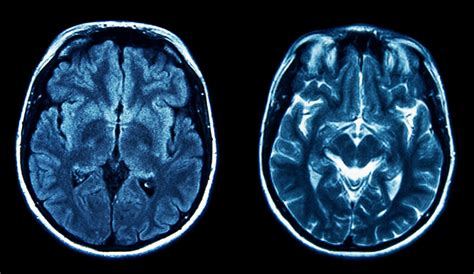 Brains Not Is Wired The Entertainment by Brain Imaging Born Murderers Study Shows Brains Of Mass