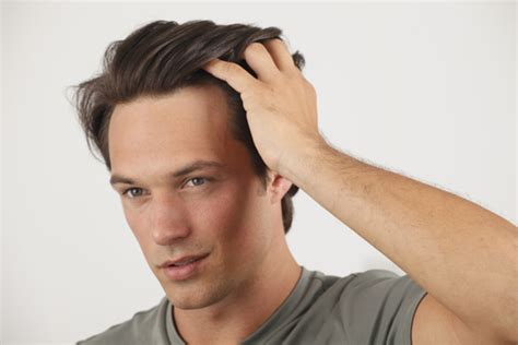 gel hairstyles for guys how can i use hair gel without getting dandruff on