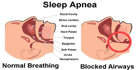 What Causes Sleepers In Your by How To Diagnose The Cause Of Your Sleep Apnea Apnea