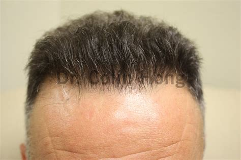 black man 3000 grafts hair transplant before and after fue before and after