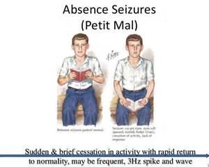 seizure symptoms image gallery seizure symptoms