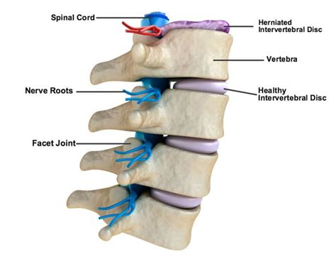 herniated disc diagram workout for herniated disc eoua