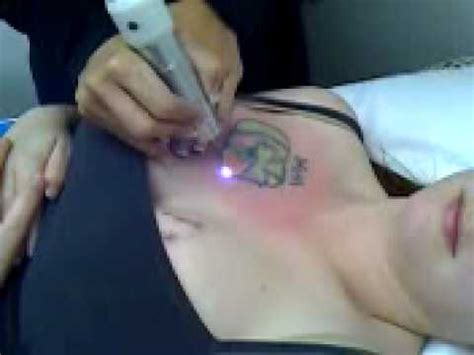 tattoo removal operation removal laser surgery