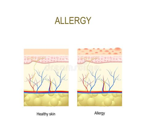 cross section human skin royalty free vector image allergy healthy and skin with allergic reaction stock vector image 91350392