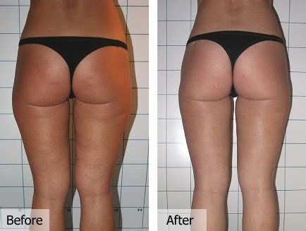brazilian wax photos before and after female bikini wax before and after pictures