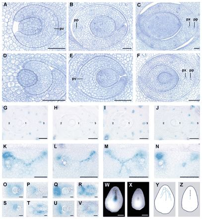 pattern formation leaf the radicleless1 gene is required for vascular pattern