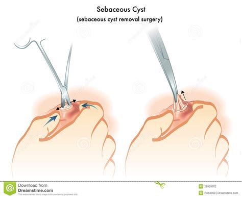 sebaceous cyst stock vector image of occlusion neck