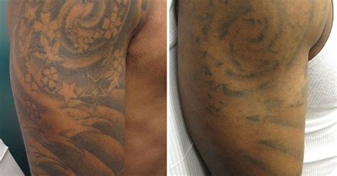 tattoo removal dc after 3 laser tattoo removal treatments there is