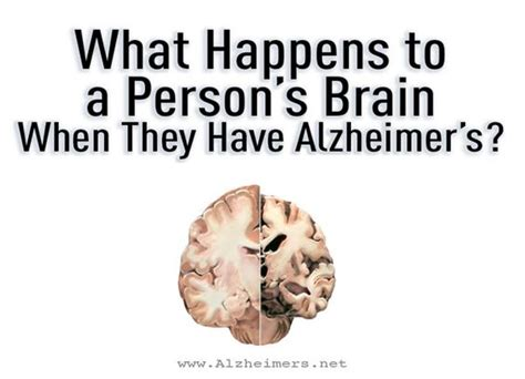 dementia mood swings elderly the most common form of dementia alzheimer s disease