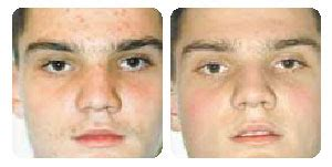 Heroin Detox And Acne by Acne Doctor Nyc