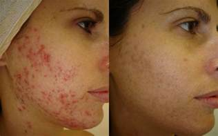 acne treatments brisbane image by laser