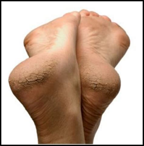 home remedies for cracked heels the of fulness